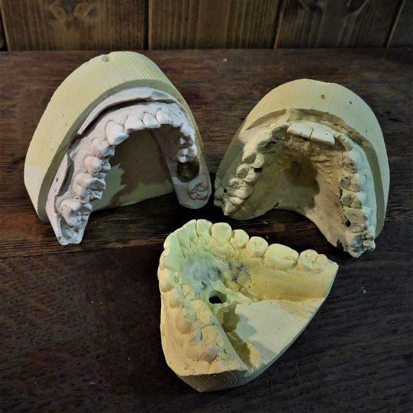 Three Dental Plaster Casts Molds